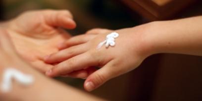 כוויות אצל תינוקות וילדים